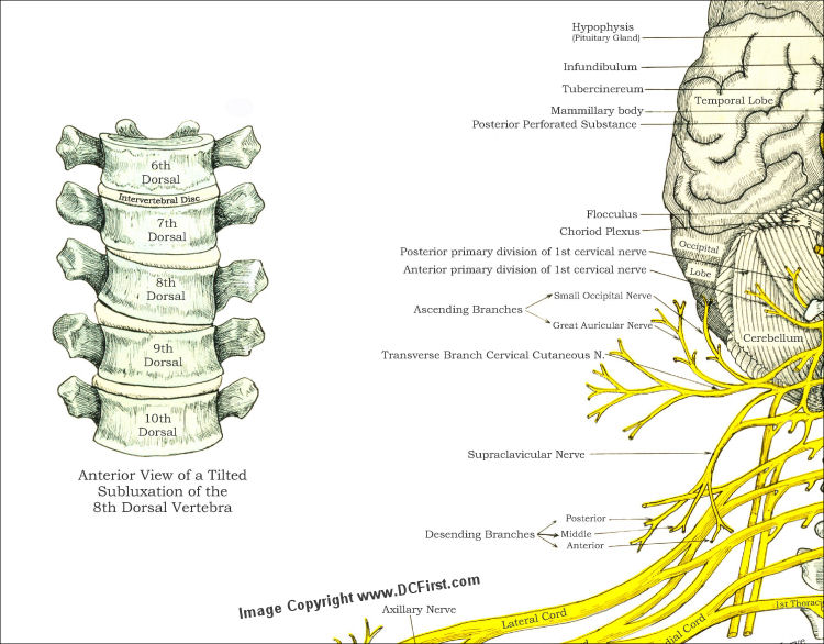 Spinal Nerves Subluxations Poster